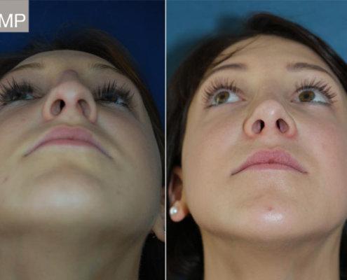 nasen-op-nasenkorrektur-vorher-nachher-nasensteg-nasenchirurgie