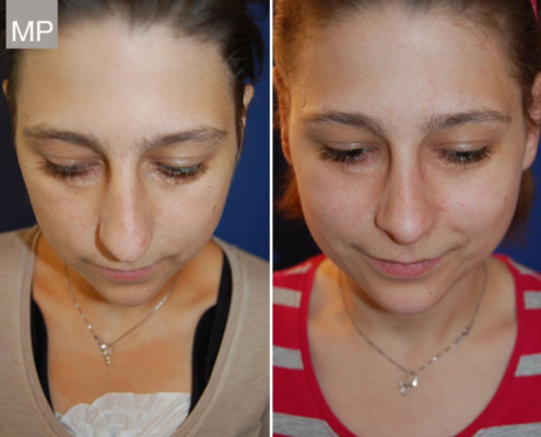 nasen-op-vorher-nachher-nasenkorrektur-hakennase-nasenchirurgie