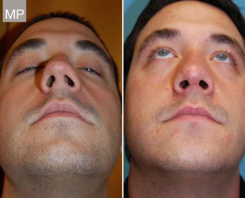 nasen-op-wien-nasenkorrektur-vorher-nachher-nasenchirurgie-x