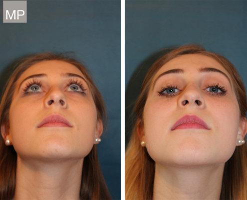 nasenchirurgie-nasen-op-vorher-nachher-hakennase
