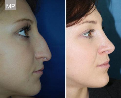 nasenchirurgie-nasenkorrektur-vorher-nachher-nasen-op-2
