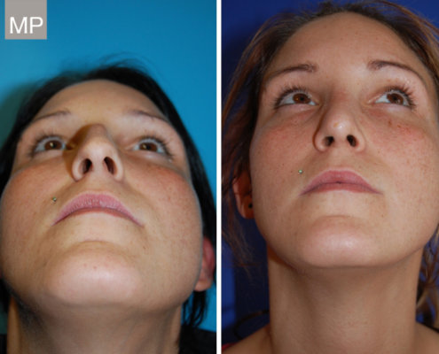 nasenchirurgie-nasenkorrektur-vorher-nachher-nasen-op