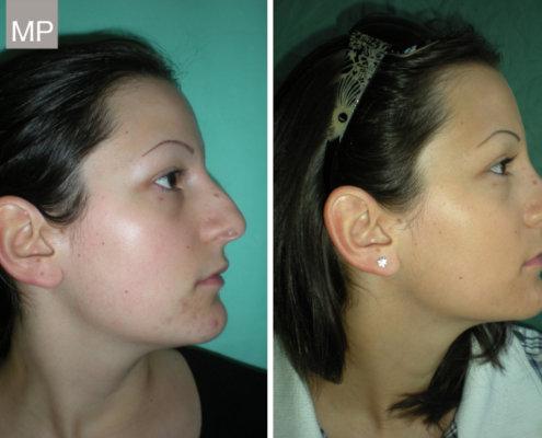 nasenchirurgie-nasenkorrektur-vorher-nachher-nasen-op-wien-2