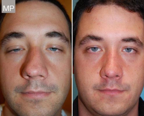 nasenchirurgie-nasenkorrektur-vorher-nachher-nasen-op-wien-x