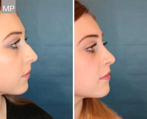 nasenchirurgie-vorher-nachher-nasen-op-wien-2