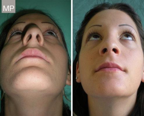 nasenkorrektur-nasenchirurgie-vorher-nachher-nasen-op-wien