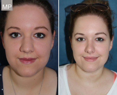 nasenkorrektur-vorher-nachher-nasen-op-wien-nasenchirurgie-2