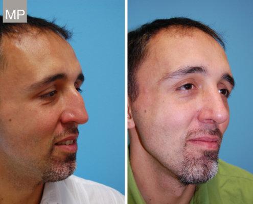 nasenkorrektur-vorher-nachher-nasen-op-wien-nasenchirurgie