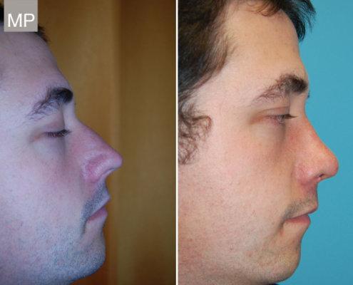 nasenkorrektur-vorher-nachher-nasen-op-wien-schiefnase-nasenchirurgie-x