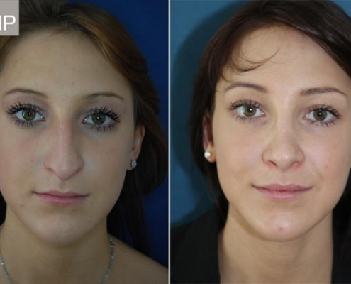 nasenkorrektur-vorher-nachher-nasenchirurgie-nasen-op-wien