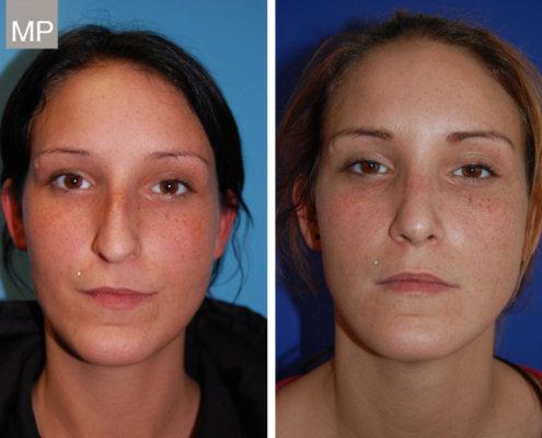 nasenkorrektur-vorher-nachher-nasenchirurgie-wien-nasen-op