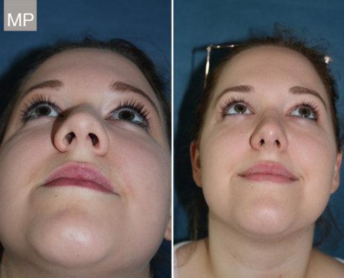 vorher-nacher-nasen-op-wien-nasenkorrektur-nasenchirurgie