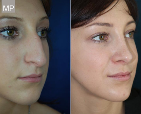 vorher-nachher-nasen-op-nasenkorrektur-nasenchirurgie
