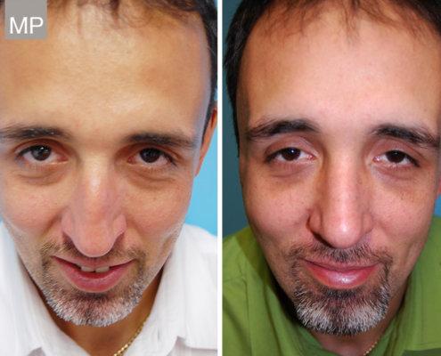 vorher-nachher-nasen-op-nasenkorrektur-nasenchirurgie-wien
