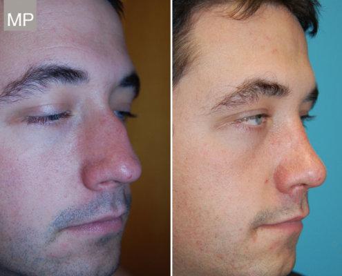vorher-nachher-nasen-op-wien-nasenkorrektur-schiefnase-nasenchirurgie-x