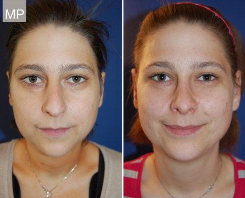 vorher-nachher-nasenchirurgie-nasenscheidewand-hoeckernase-nasen-op