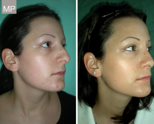 vorher-nachher-nasenkorrektur-nasenchirurgie-nasen-op-wien