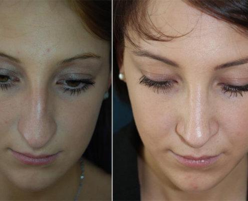 vorher-nachher-nasenruecken-nasenchirurgie-nasen-op-nasenkorrektur